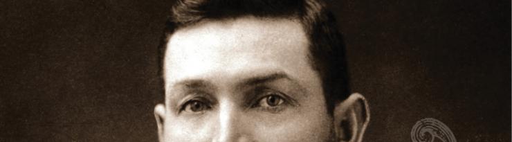 Watson's eyes